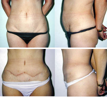 A 44 Year Old Woman Before And After 6 Months Abdominoplasty To Remove Excess Skin Stretch Marks